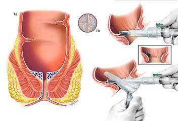 همه چیز درباره جزوه داخلی جراحی
